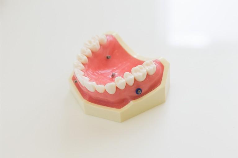 歯科矯正用アンカースクリューを用いた矯正治療(ミニスクリュー)