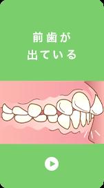 前歯が 出ている
