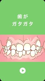 歯が ガタガタ