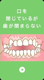 口を 閉じているが 歯が閉まらない