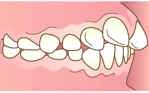 前歯が出ている「上顎前突」