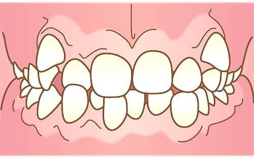 歯がガタガタ「叢生(そうせい)」