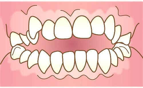 口を閉じているが歯が閉まらない「開咬」